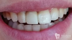 recontruirea-dintelui-lipsa-dupa