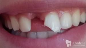 recontruirea-dintelui-lipsa-inainte