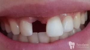 recontruirea-dintelui-lipsa1